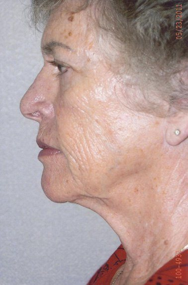 Facelift  - Dr. Richard Bosshardt