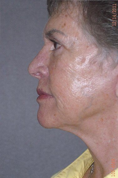Facelift  - Dr. Richard Bosshardt