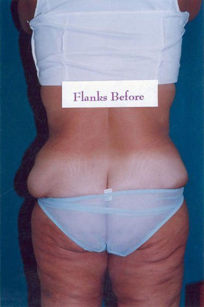 Flankplasty - Dr. Peter Marzek