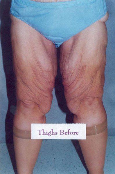 Thigh Lift - Dr. Peter Marzek