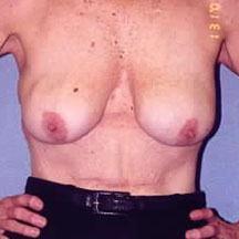 Breast Lift - Dr. Richard Bosshardt