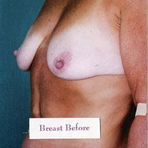 Breast Lift - Dr. Peter Marzek