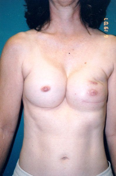 Breast Reconstruction - Dr. Peter Marzek