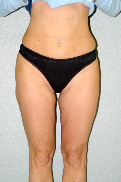 Liposuction/LifeSculpt - Dr. Peter Marzek
