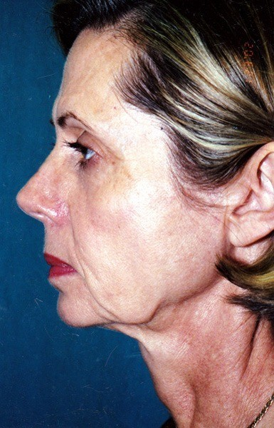 Combined Facial Procedures - Dr. Peter Marzek