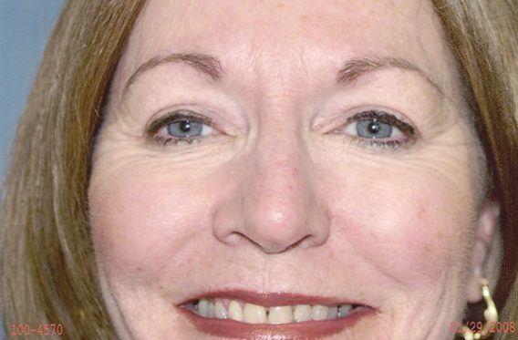 Eyelid Rejuvenation - Dr. Richard Bosshardt