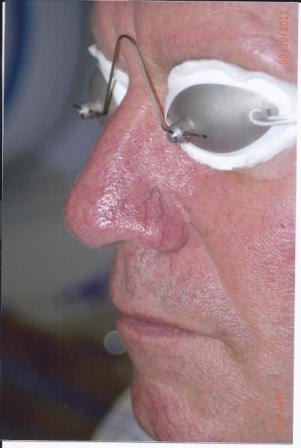 Lasers, Intense Pulsed Light, Chemical Peels - Dr. Richard Bosshardt