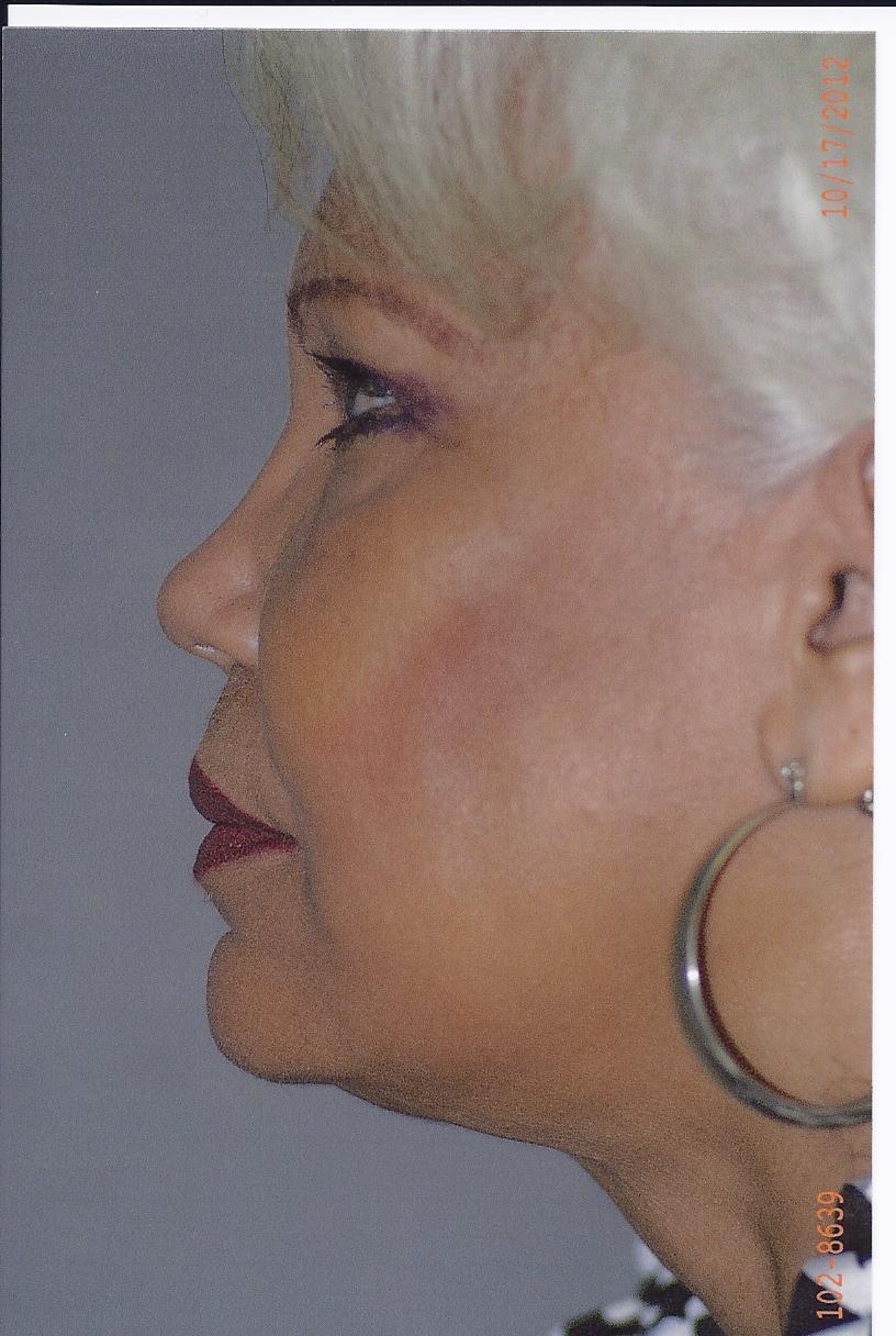 Combined Facial Procedures - Dr. Richard Bosshardt