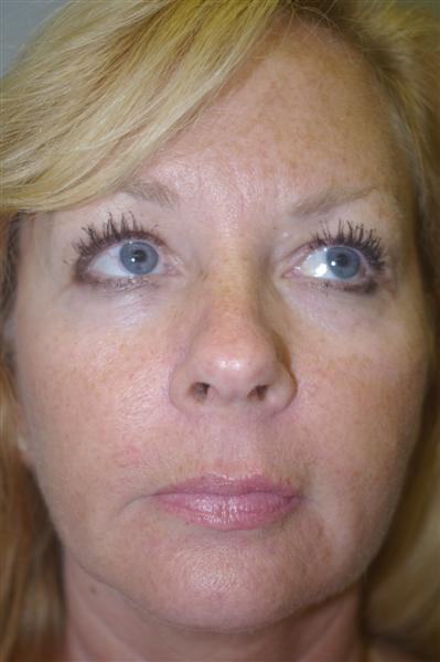 Lasers, Intense Pulsed Light, Chemical Peels - Dr. Peter Marzek