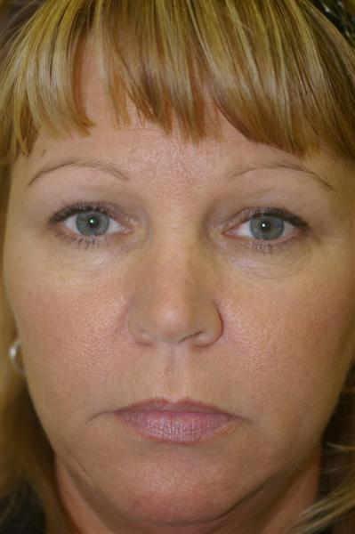 Eyelid Rejuvenation - Dr. Peter Marzek
