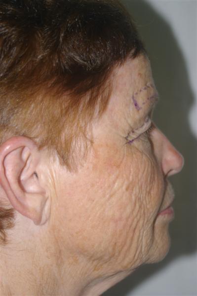 Combined Facial Procedures - Dr. Peter Marzek