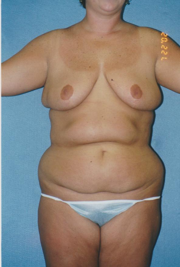 Combined Body Procedures - Dr. Richard Bosshardt