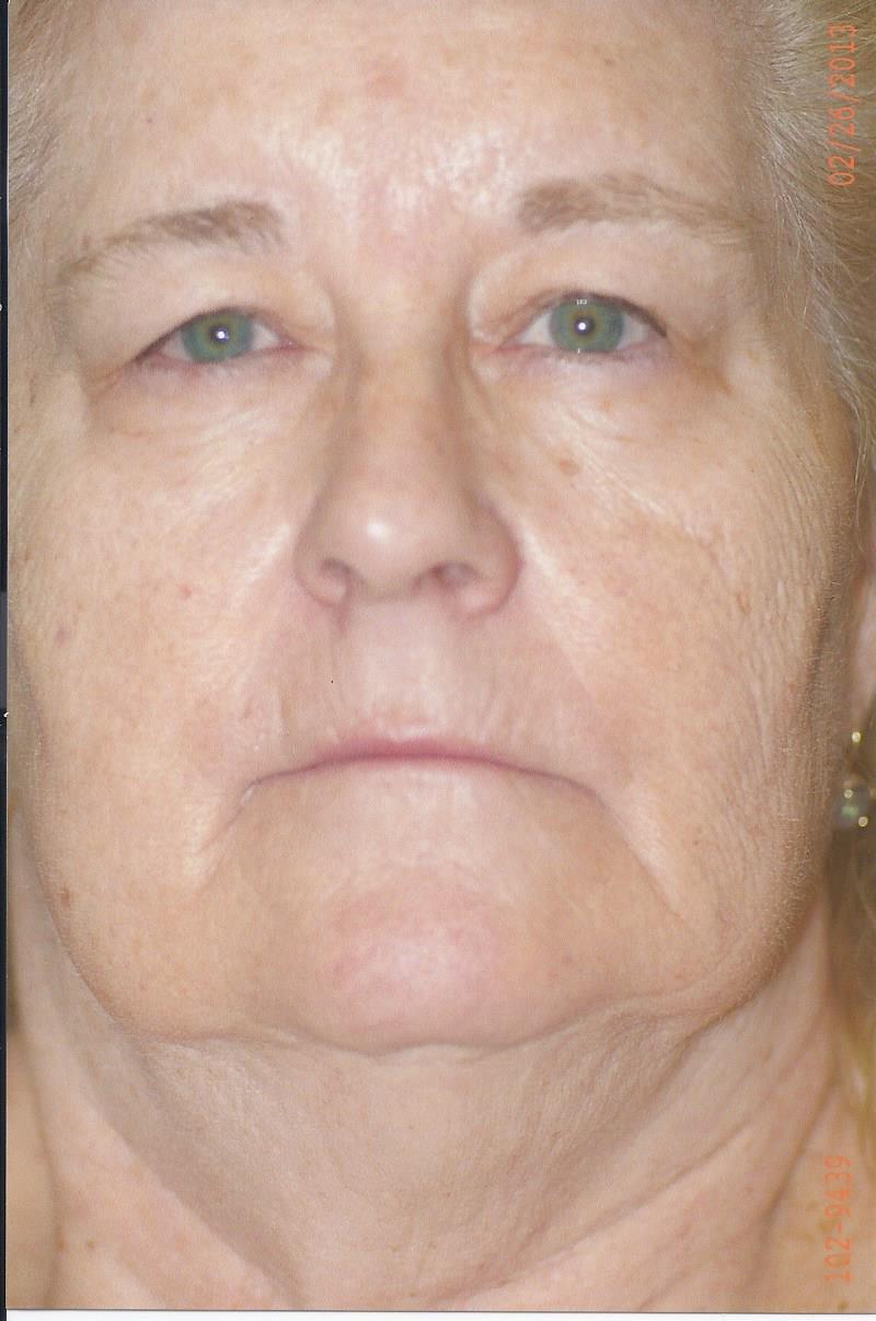 Forehead/Brow Lift - Dr. Richard Bosshardt
