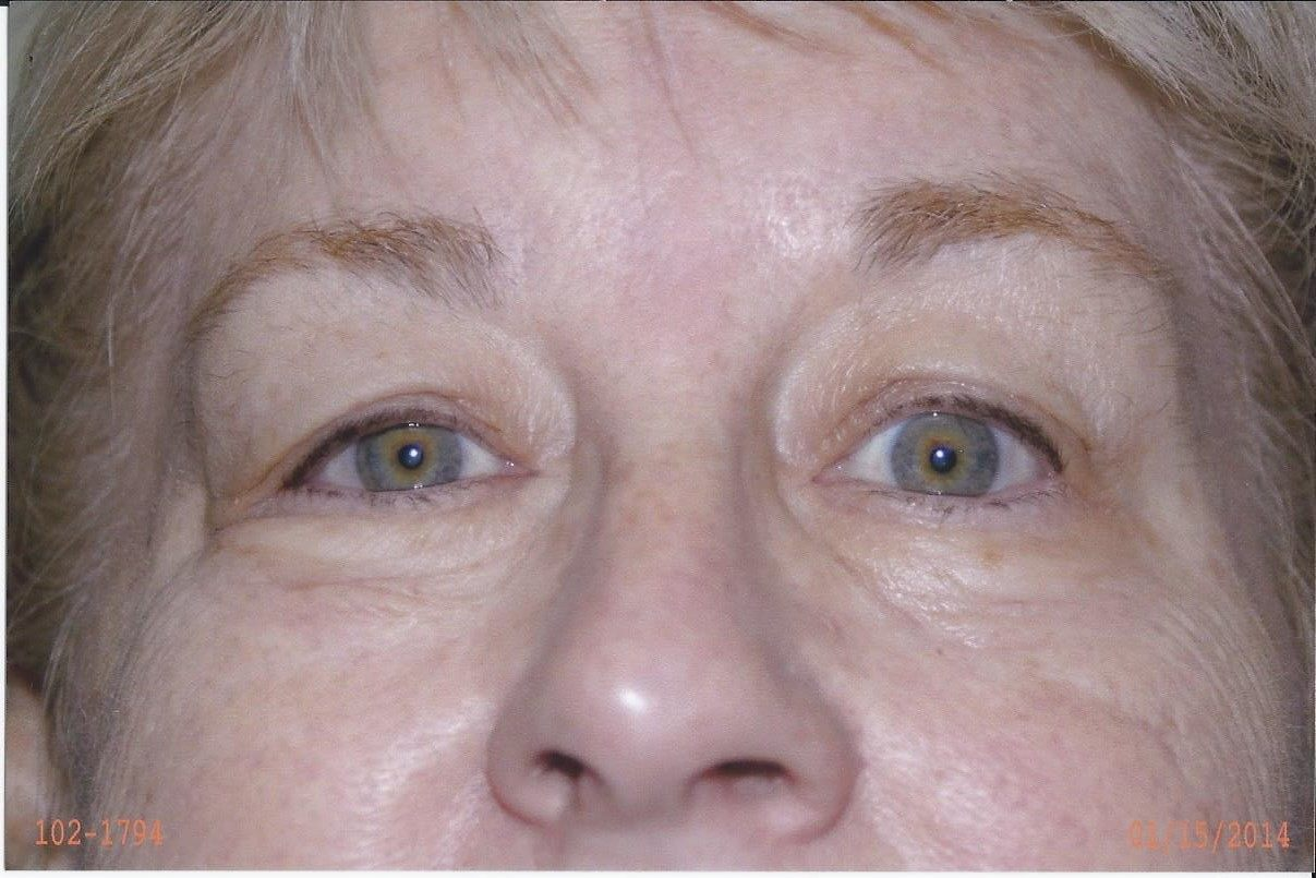 Forehead/Brow Lift - Dr. Richard Bosshardt