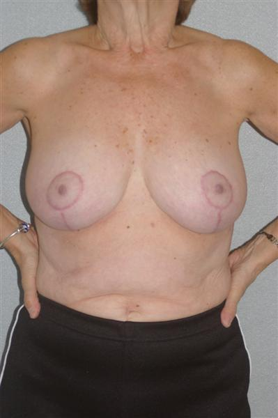 Breast Reduction - Dr. Richard Bosshardt