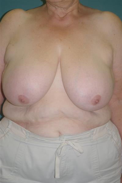 Breast Reduction - Dr. Peter Marzek