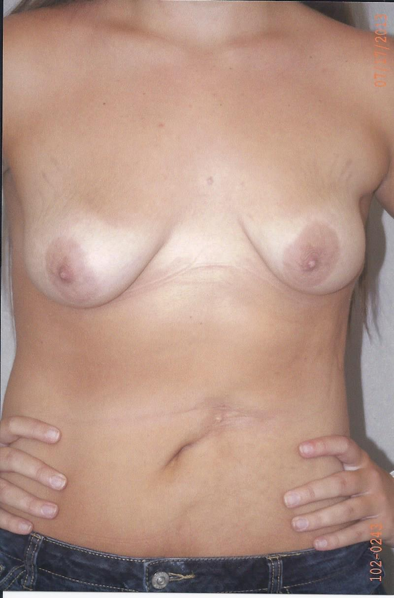 Combined Breast Procedures - Dr. Richard Bosshardt