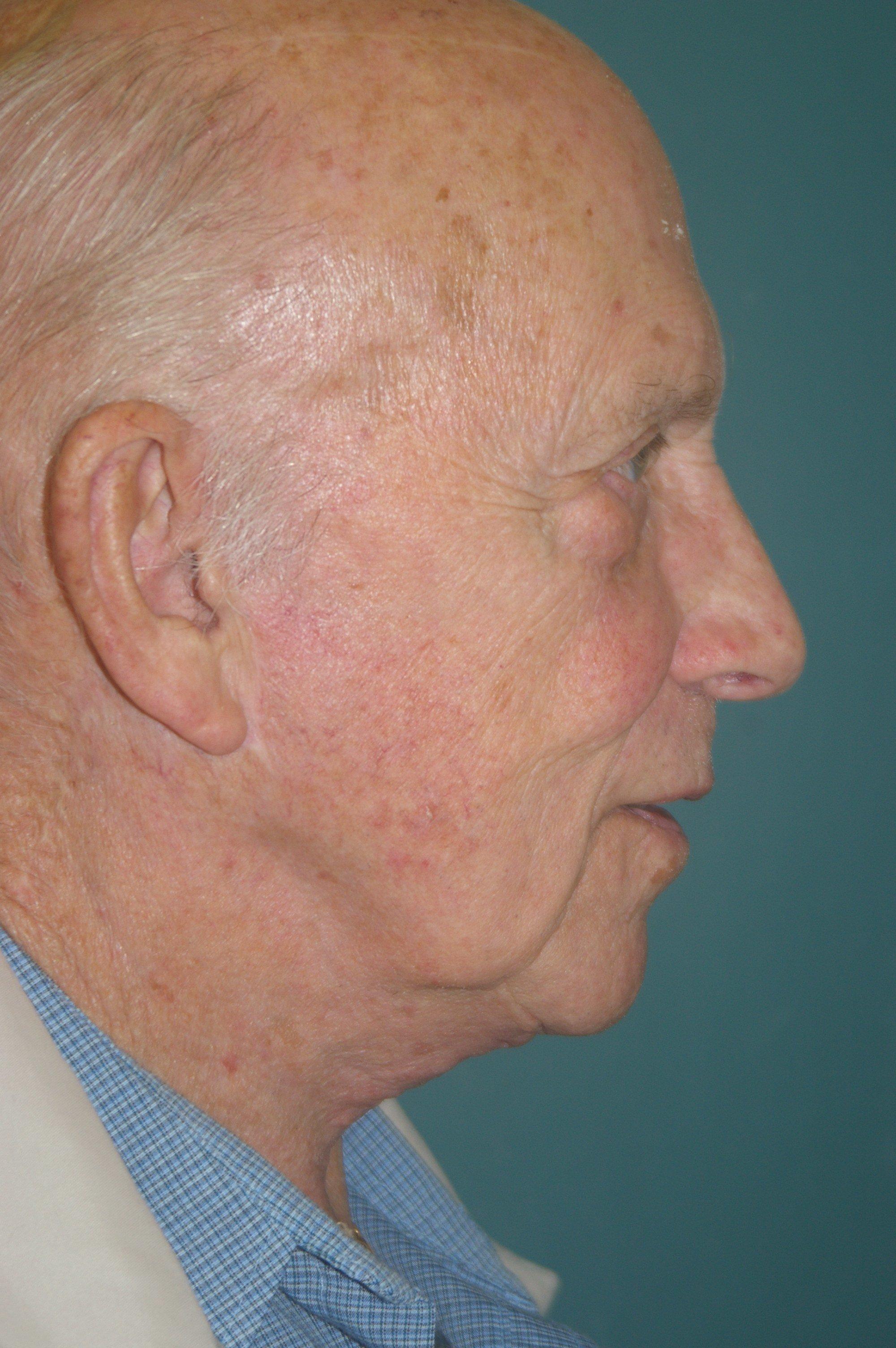 Neck Lift - Dr. Peter Marzek