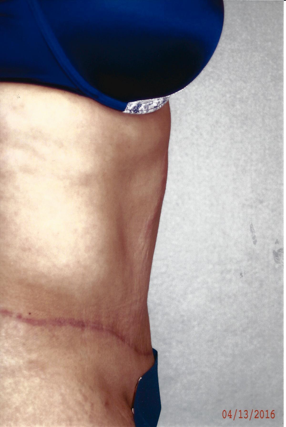 Abdominoplasty - Dr. Richard Bosshardt