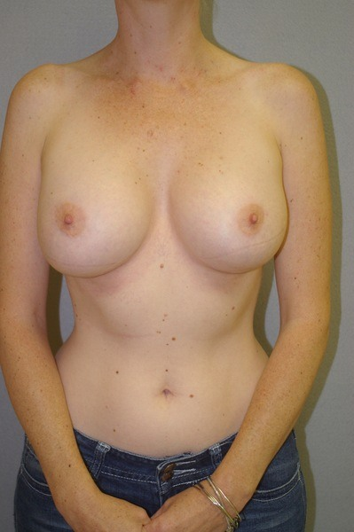 Breast Augmentation - Dr. Peter Marzek