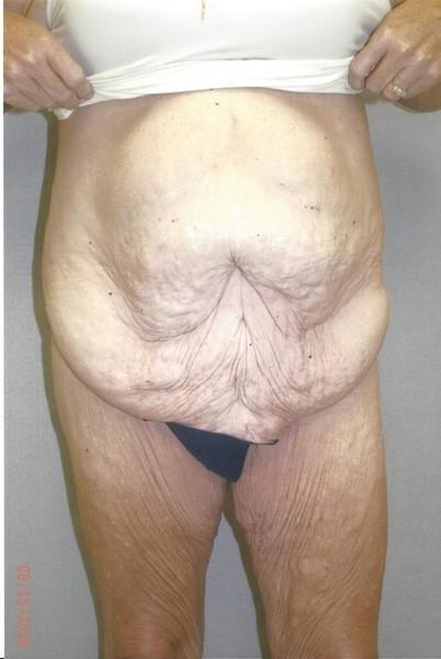 Panniculectomy - Dr. Richard Bosshardt