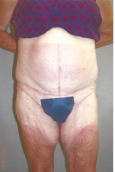 Panniculectomy - Dr. Richard Bosshardt