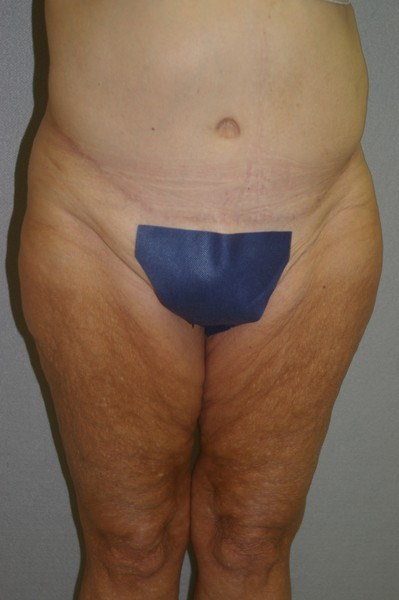 Abdominoplasty - Dr. Peter Marzek