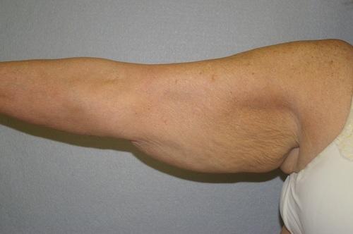Arm Lift - Dr. Peter Marzek