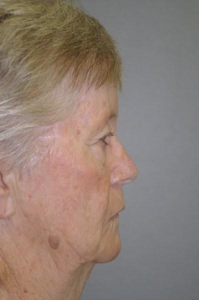 Eyelid Rejuvenation - Dr. Peter Marzek