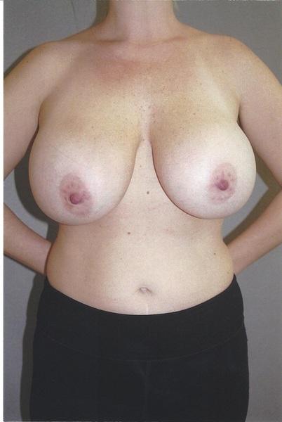 Combined Breast Procedures - Dr. Richard Bosshardt