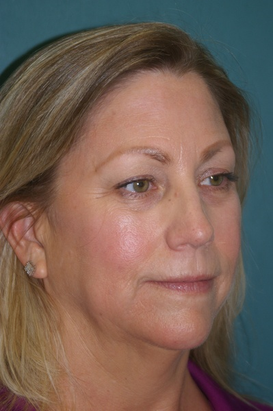 Forehead/Brow Lift - Dr. Peter Marzek