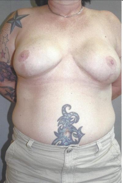 Breast Reconstruction - Dr. Richard Bosshardt