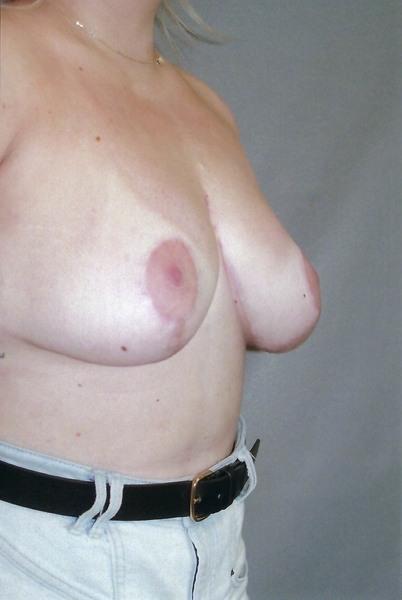 Breast Reduction - Dr. Richard Bosshardt
