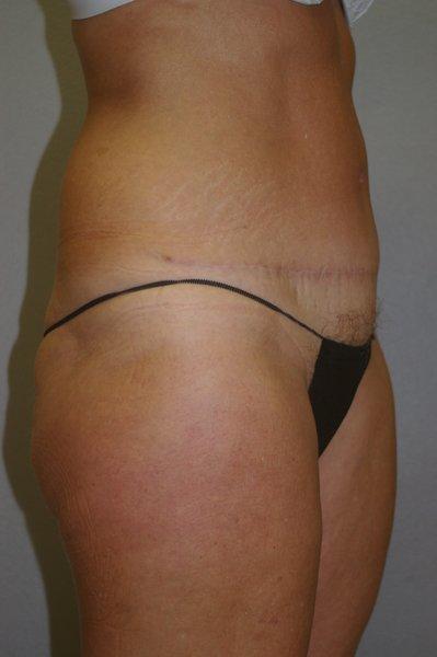 Abdominoplasty - Dr. Peter Marzek