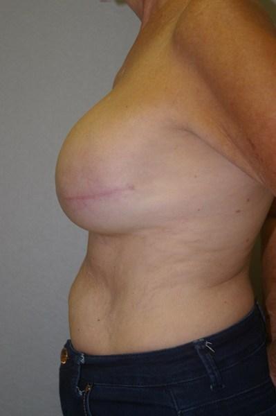 Breast Reconstruction - Dr. Peter Marzek