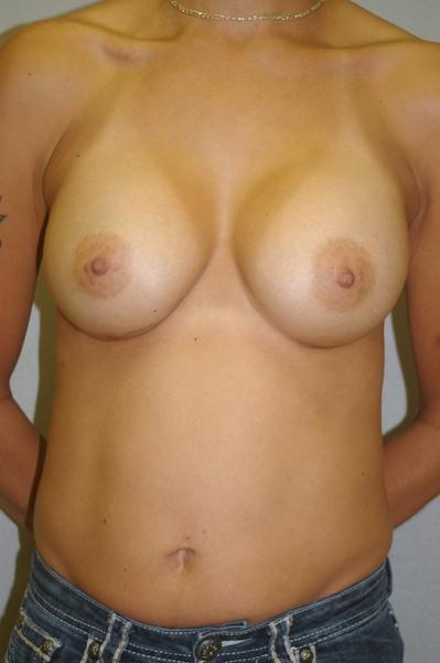 Breast Augmentation - Dr. Peter Marzek