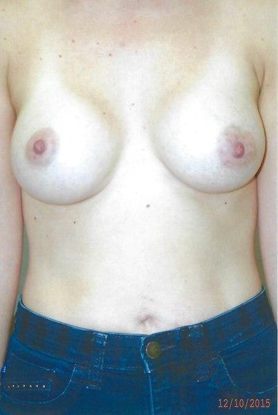 Breast Augmentation - Dr. Richard Bosshardt