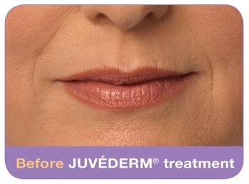 Before Juvederm