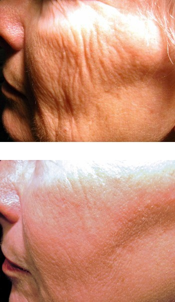 Non Ablative Skin Resurfacing